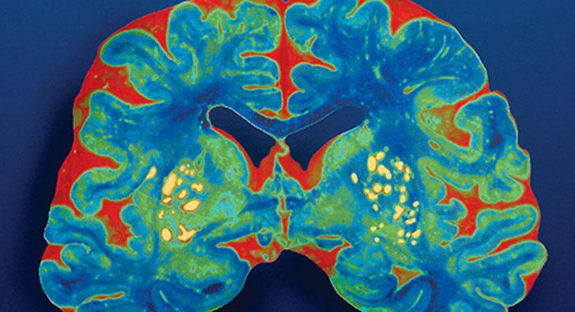Seeking an End to Alzheimer's