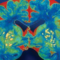 Alzheimer's Disease Program